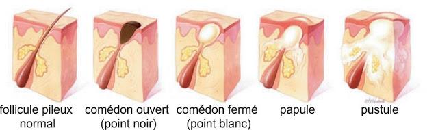Schema acne